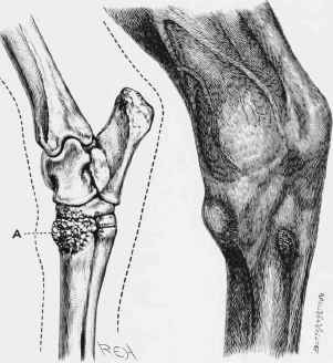 Tibiotarsal joint knee surgery